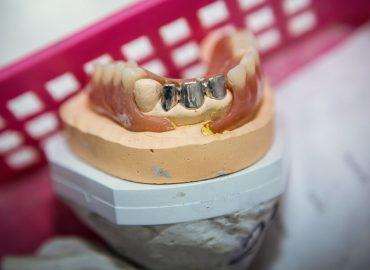 Laborator tehnica dentara