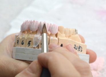 laborator-tehnica-dentara-rana-art-dent-7
