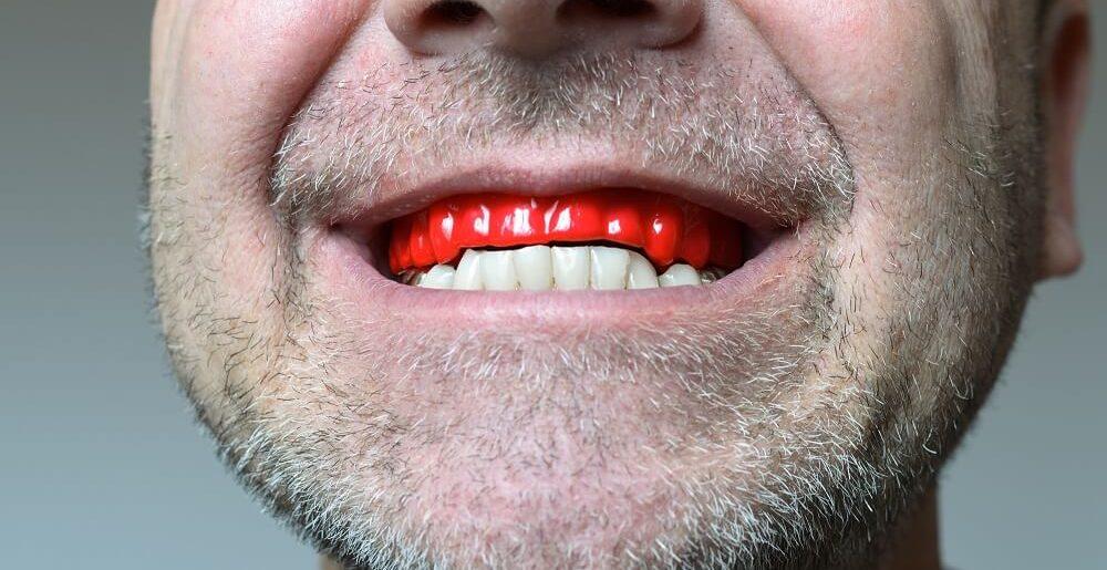 scrâșnitul din dinți