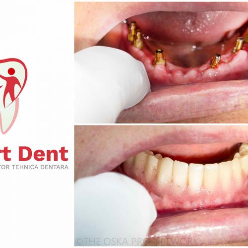 implant dentar rapid bucuresti sector 4