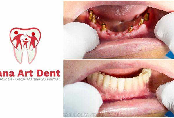 implant dentar rapid bucuresti sector 4