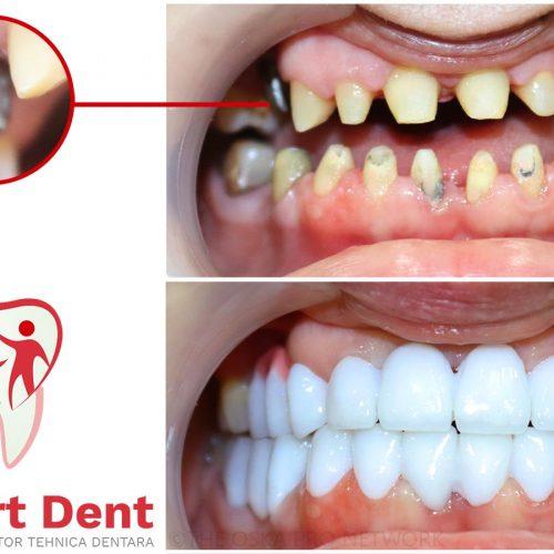 Implantologie Dentara Bucuresti Sector 4