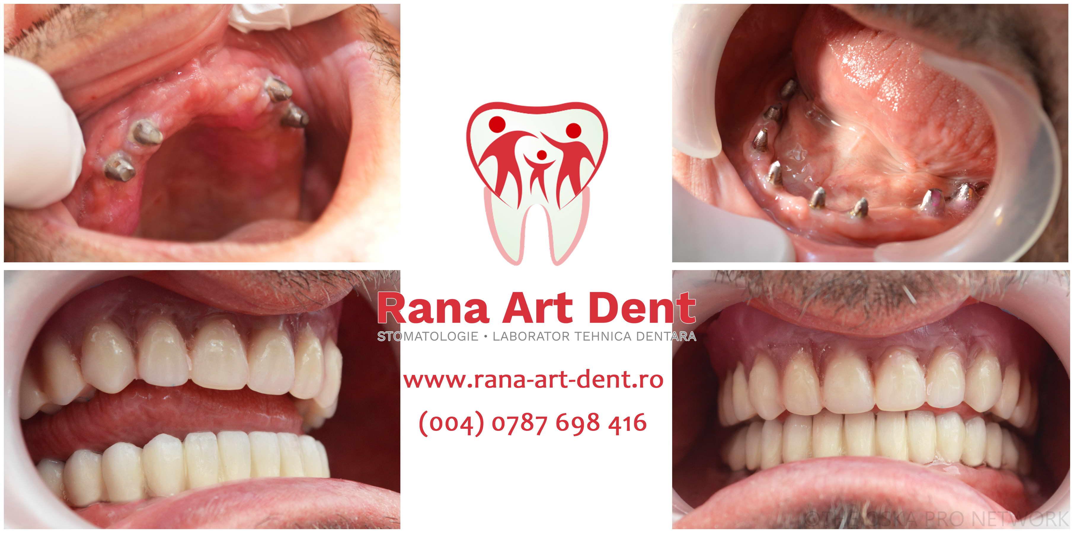 proteze dentare pe implanturi dentare inainte si dupa