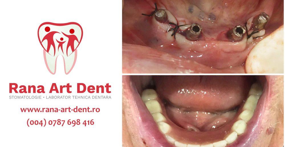 Edentatie Totalasi Implant Dentar Rapid