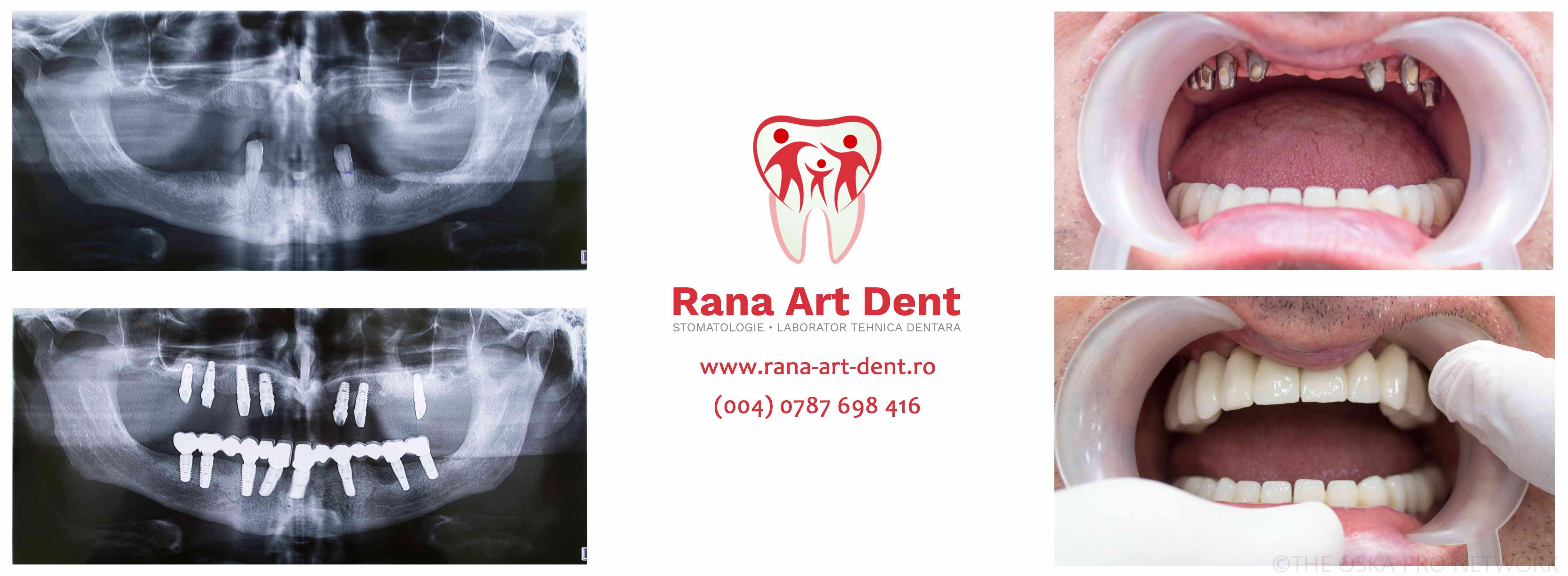 Implantrui Dentare Lucrari Protetice Metalo ceramice!